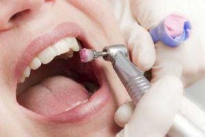 جرم گیری دندان کودکان