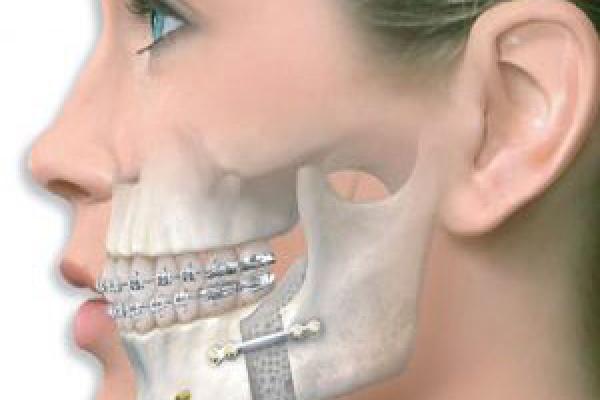 جراحی فک و دهان و صورت کودکان