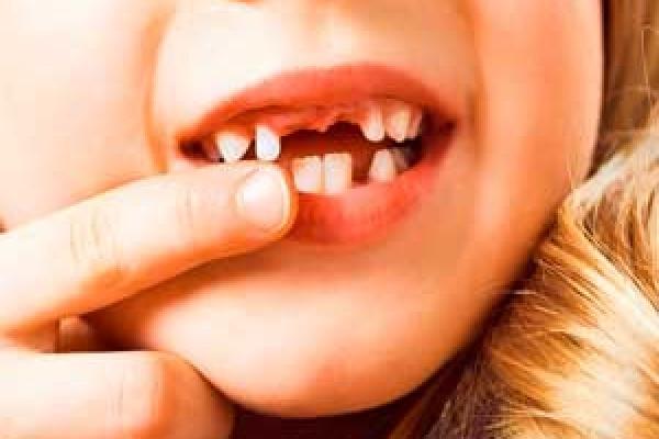 مشکلات اورژانسی دندان