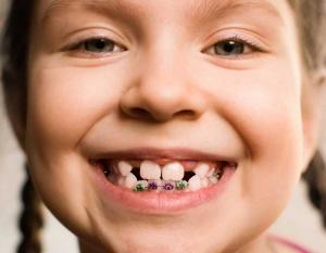 آلرژی کودکان به ارتودنسی کودکان