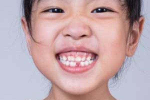 دندانپزشکی کودکان هموفیلی