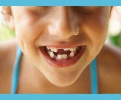 شکستن دندان شیری