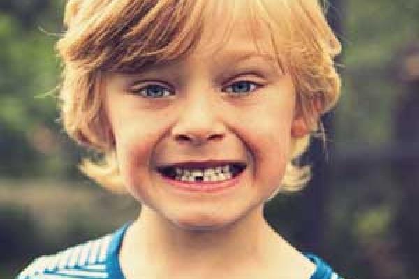 عصب کشی دندان شیری کودک