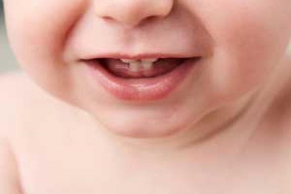 لکه قطره آهن روی دندان
