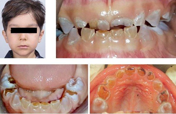 عکس دندان : Dentinogenesis Imperfecta چیست