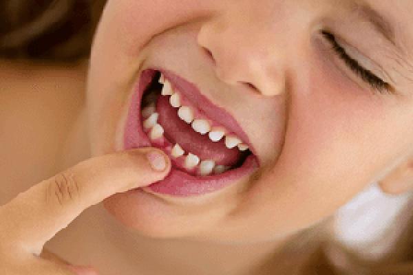 لیزر و دندان های شیری