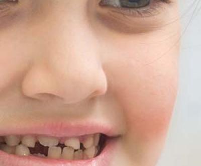 ساده ترین روش ترمیمی دندان های قدامی