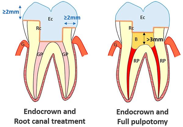 دندان های شیری پالپوتومی شده