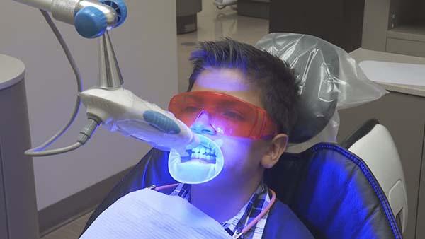 لیزر درمانی سطح پایین بجای پالپوتومی