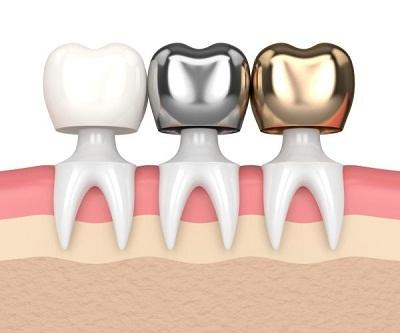 مقاومت روکش های دندان