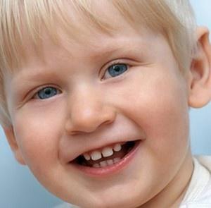رویه سیلانت دندان