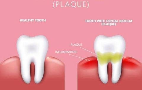 بیوفیلم دندانپزشکی